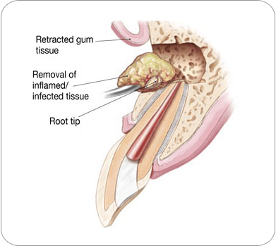 Retracted gum tissue