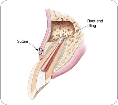 Suture and Root end filling