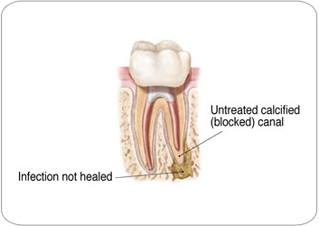 Why do I need another endodontic procedure?